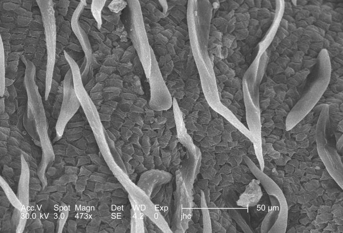 Magnified 473x, this scanning electron micrograph (SEM) revealed some of the morphologic ultrastructural details adorning the surface of a &