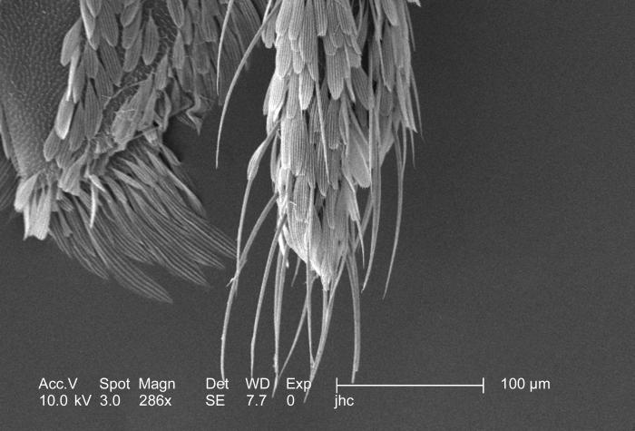 At a magnification of 286x, this scanning electron micrograph (SEM) revealed some of the morphologic features displayed on the exoskeletal s