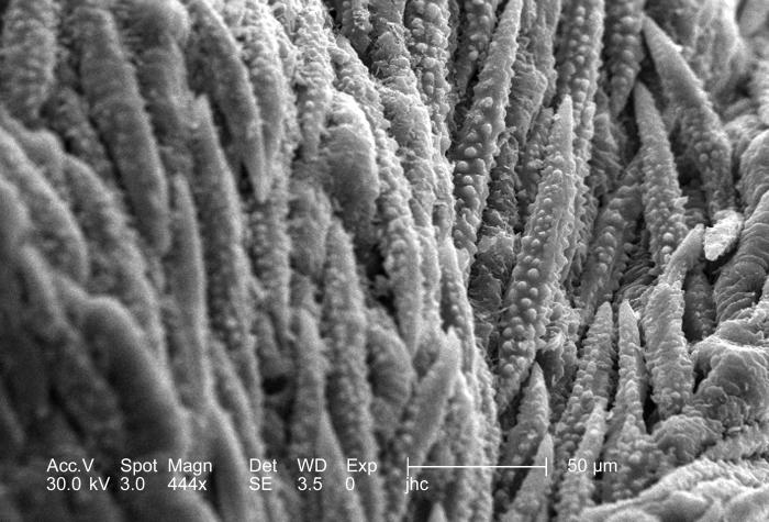 Under a moderately high magnification of 444x, this scanning electron micrograph (SEM) revealed some of the morphologic ultrastructural surf