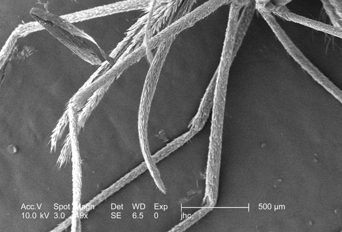 This low magnification scanning electron micrograph (SEM), enlarged only 49x, revealed some of the morphologic features displayed by an Anop