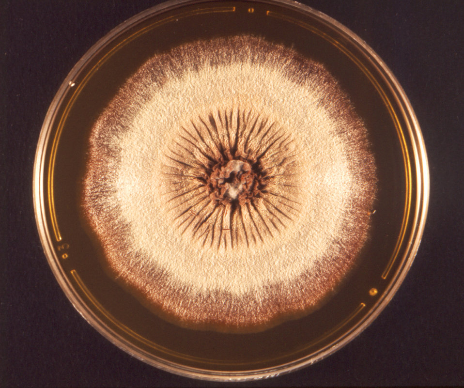 This photograph depicts the frontal view of a Petri dish within which a colony of the African form of the fungus, Trichophyton rubrum, had b