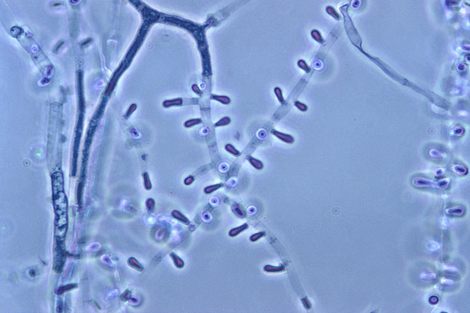 Magnified 1000X, this photomicrograph revealed some of the ultrastructural morphology exhibited by this dermatophytic fungus, Trichophyton s