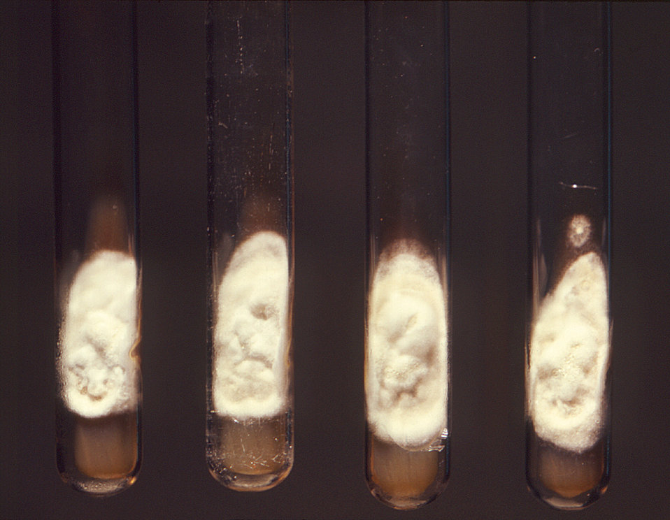 This photograph revealed slant-culture test tubes, each containing a colony of Histoplasma capsulatum fungal organisms, which had been isola