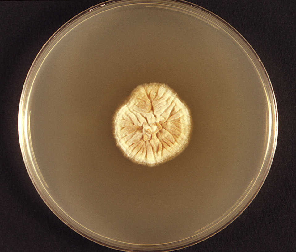 This photograph featured a Petri dish, which had been used to culture a colony of dermatophytic fungus, Trichophyton soudanense. In this par