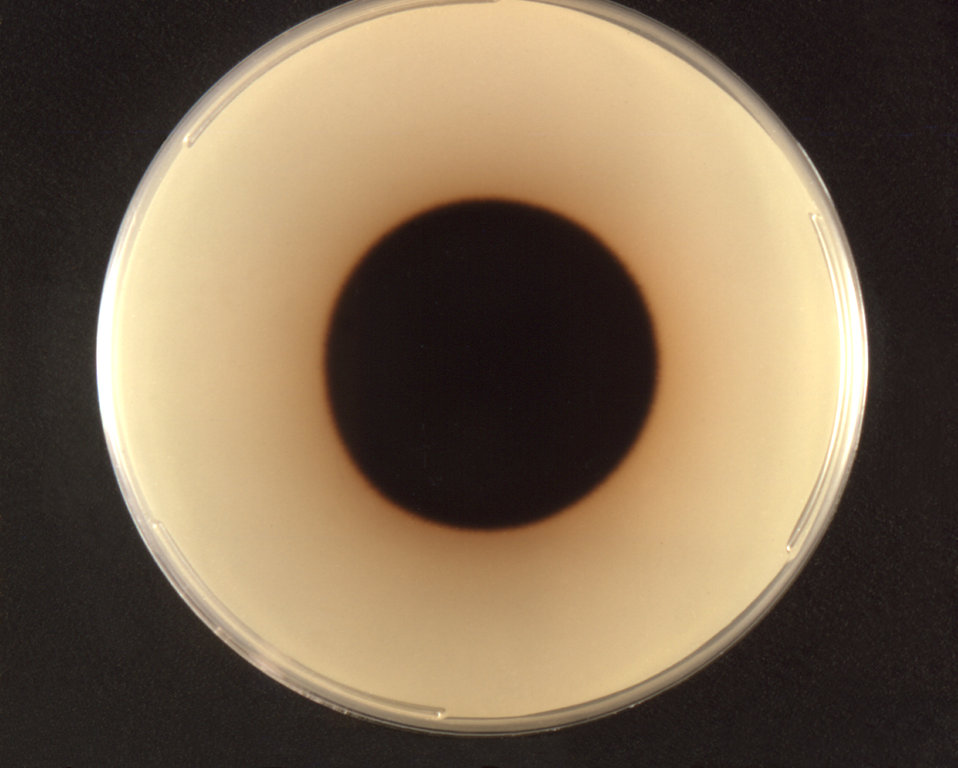 Photographed from the front, this image depicted a Petri dish containing a single Ochroconis gallopavum fungal colony, formerly known as Dac