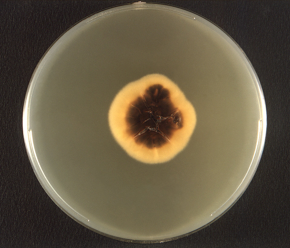 This photograph depicts the reverse view of a Petri dish within which a fungal colony of a Mexican isolate ofTrichophyton rubrum var. rodain