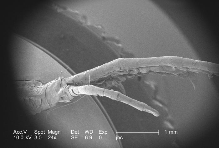 Photographed here under a low magnification of 24x, this scanning electron micrograph (SEM) depicted some of the external morphologic featur