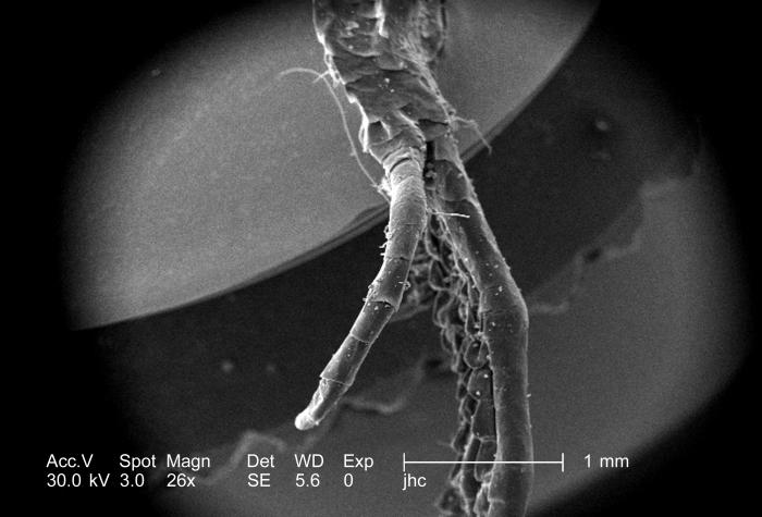Photographed here under a low magnification of 26x, this scanning electron micrograph (SEM) depicted some of the external morphologic featur