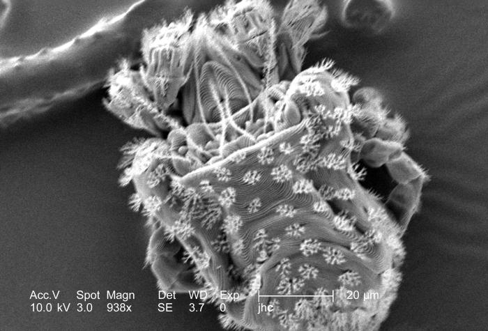 Under a moderately high magnification of 938x, this scanning electron micrograph (SEM) revealed the presence of numbers of mites from the sp