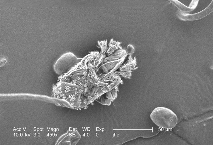 Under a magnification of 459x, this scanning electron micrograph (SEM) revealed the presence of numbers of mites from the specie Nanorcheste