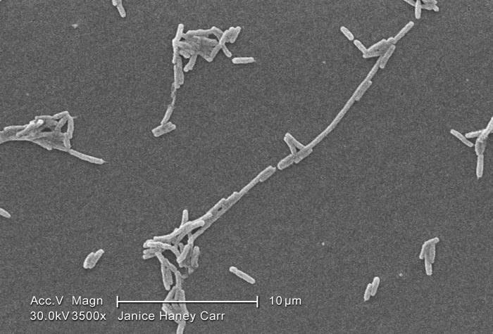 Under a moderately-high magnification of 3500X, this scanning electron micrograph (SEM) depicted a scattered group of Gram-negative Legionel