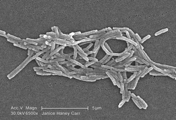 Under a moderately-high magnification of 6500X, this scanning electron micrograph (SEM) depicted a grouping of Gram-negative Legionella pneu