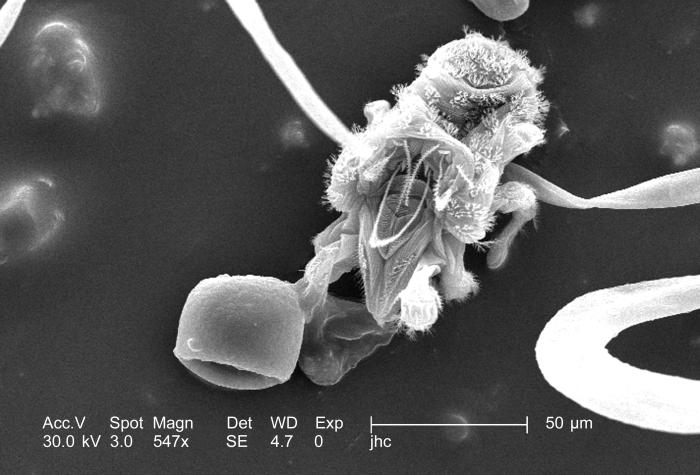 Under a moderately high magnification of 547x, this scanning electron micrograph (SEM) revealed the presence of numbers of mites from the sp