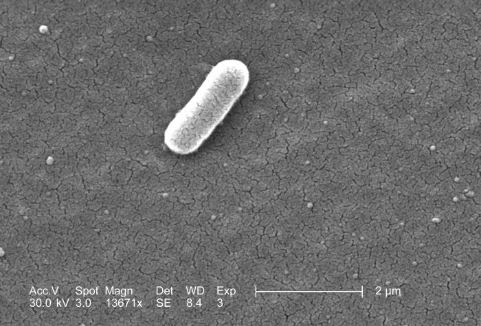 Under a high magnification of 13671x, this scanning electron micrograph (SEM) depicted a single Gram-negative Escherichia coli bacterium of