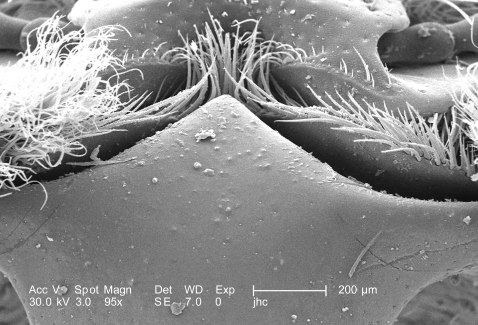 At a low magnification of 95X, this scanning electron micrograph (SEM) depicted some of the morphologic exoskeletal features located on the