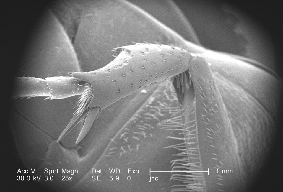 At a low magnification of only 25X, this scanning electron micrograph (SEM) depicted some of the morphologic exoskeletal features located on