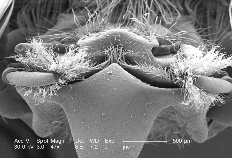 At a low magnification of only 47X, i.e., twice that of PHIL 9928, this scanning electron micrograph (SEM) depicted some of the morphologic