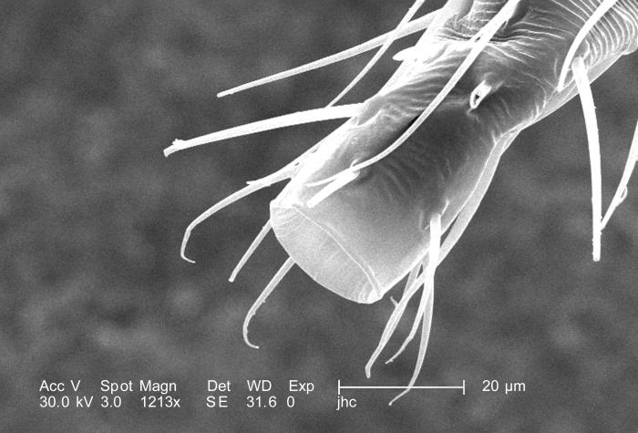 Under a moderately high magnification of 1213X, this scanning electron micrograph (SEM) revealed some of the morphologic features located at