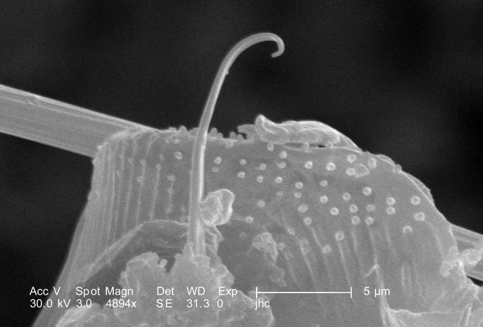 Highly magnified 4894X, this scanning electron micrograph (SEM) revealed some of the morphologic features located at the distal end of an un