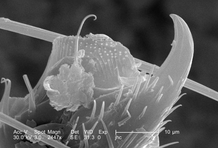 Highly magnified 612X, this scanning electron micrograph (SEM) revealed some of the morphologic features located at the distal end of an uni