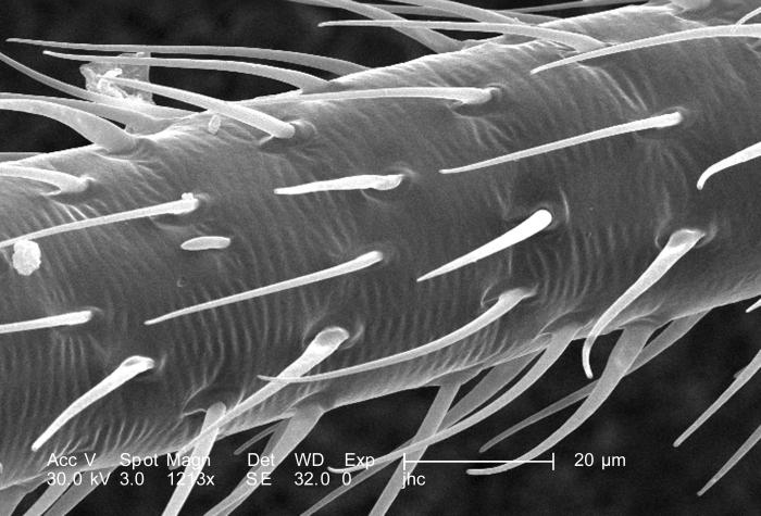 Under a magnification of 1213X, this scanning electron micrograph (SEM) revealed some of the morphologic features located upon the surface o