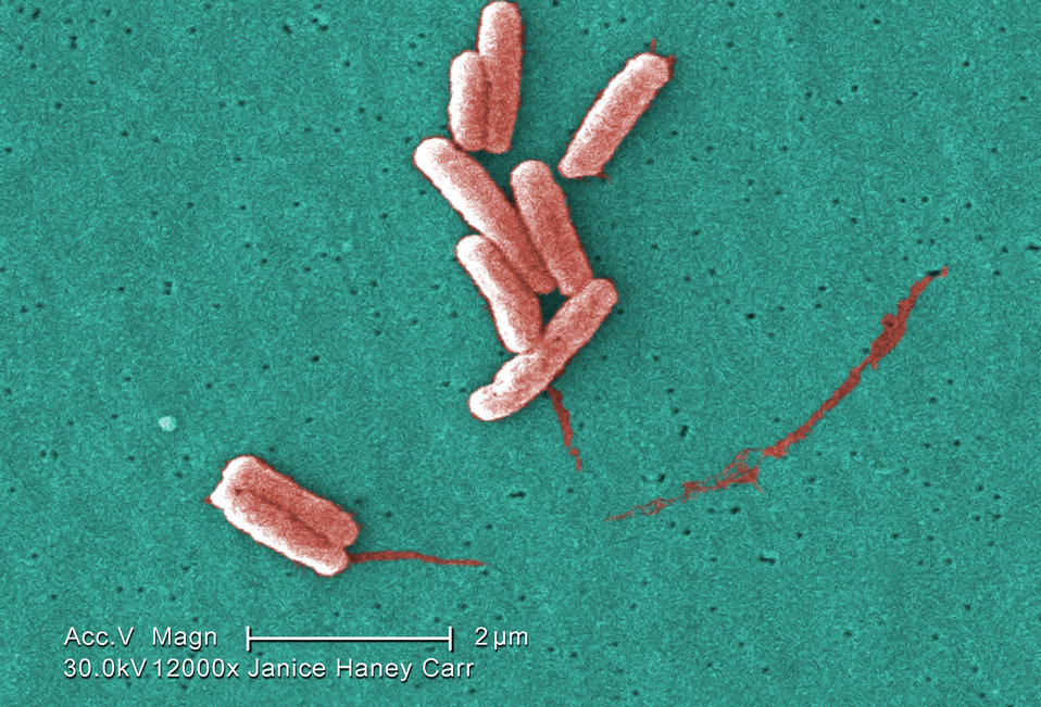 Under a very high magnification of 12000X, this colorized scanning electron micrograph (SEM) depicted a number of Gram-negative Legionella p