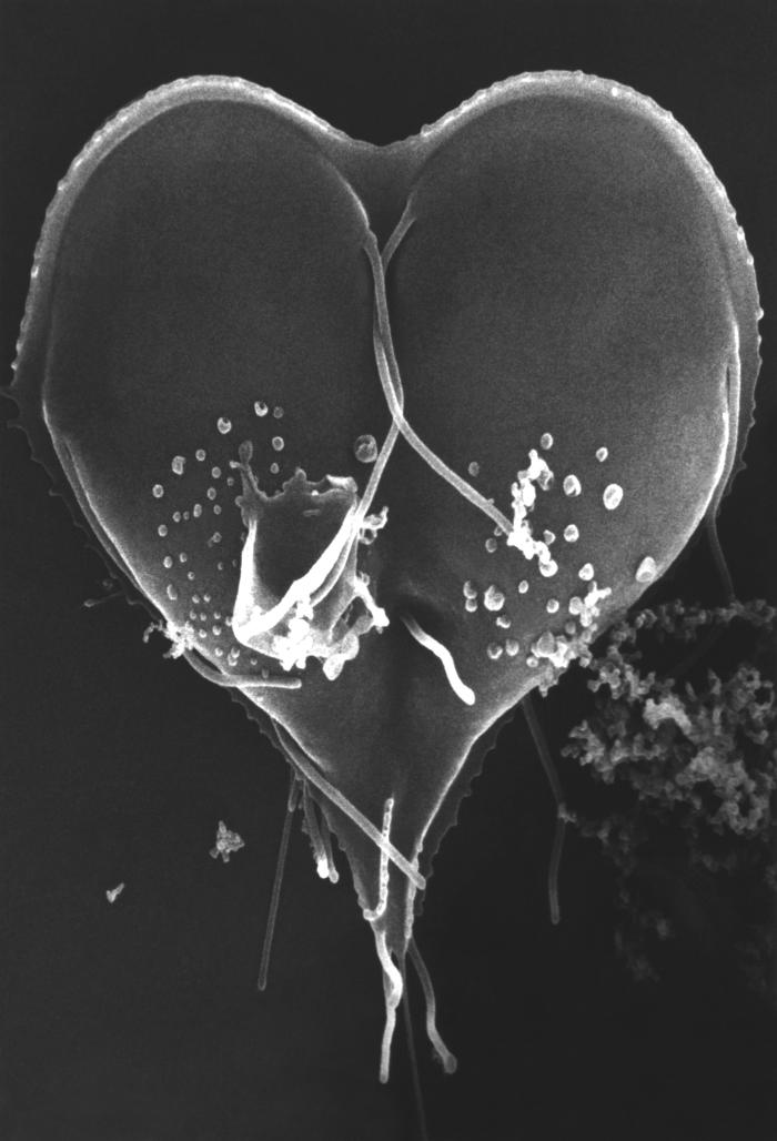 This scanning electron micrograph (SEM) depicted a Giardia lamblia protozoan that was about to become two separate organisms, as it was caug