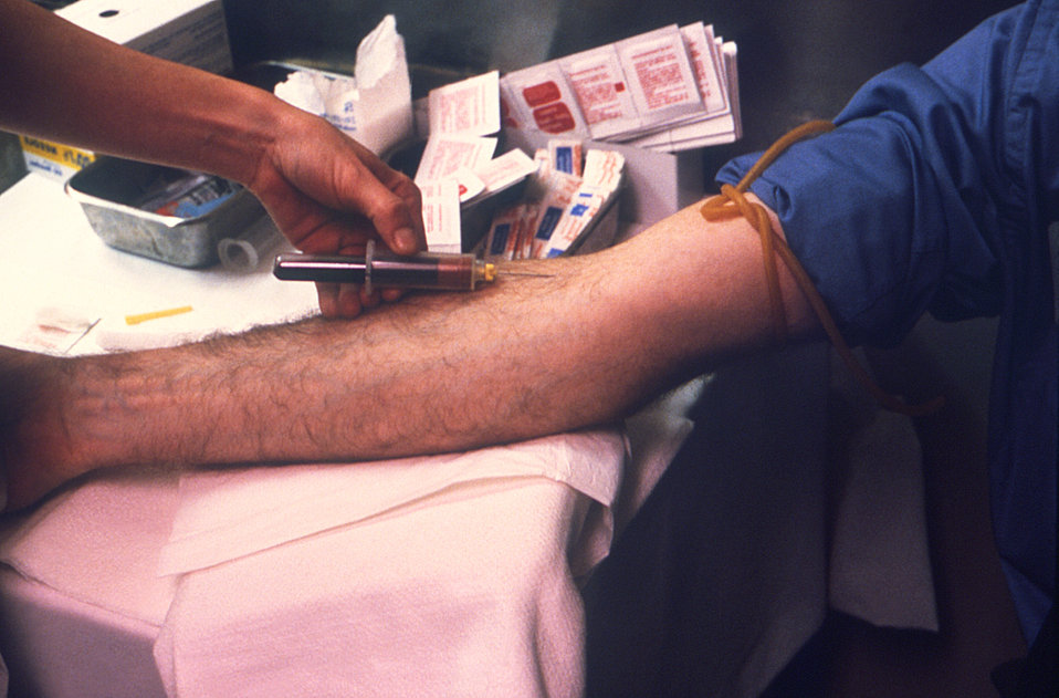 This phlebotomist was in the process of extracting a blood sample from a field-study volunteer's right antecubital fossa, during a 1979 Legi