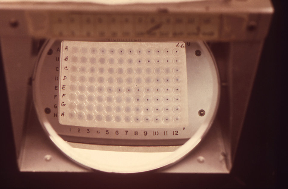 This image depicts a 96-well microtitration 'V' plate, which was being used to conduct microtiter direct agglutination tests (DAT) upon immu