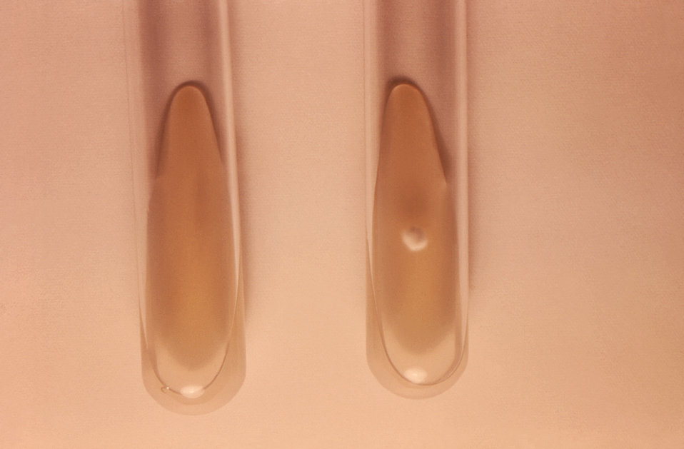 The two test tubes depicted here were being used to carry out a nutritional test involving the identification of various dermatophytic funga