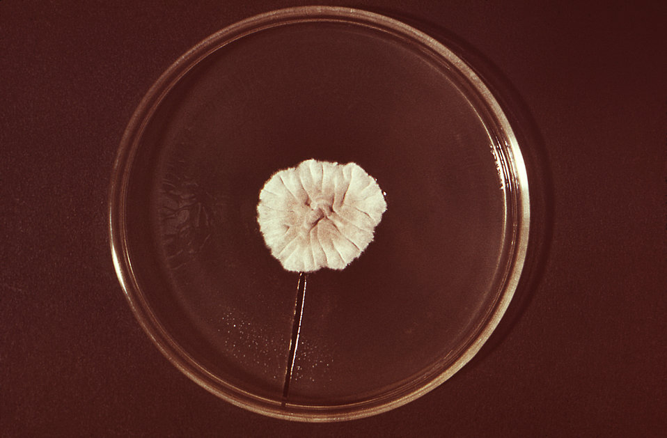 This image depicts a Petri dish containing an agar growth medium, atop which a single anthropophilic colony of Trychophyton megninii, strain