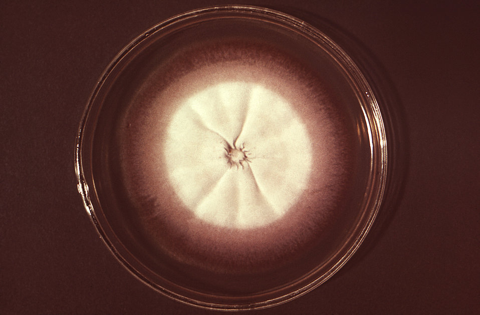 This image depicts a Petri dish containing an agar growth medium, atop which a single large anthropophilic colony of Trychophyton megninii,