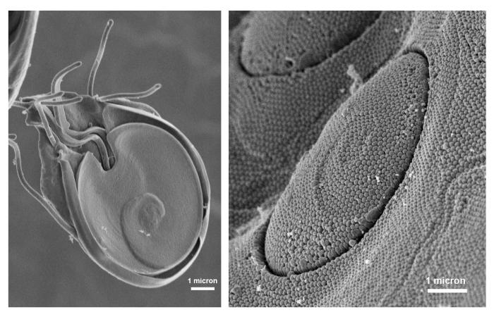 These scanning electron micrographs (SEM) revealed the ultrastructural morphology of a Giardia protozoan's ventral adhesive disk on the left