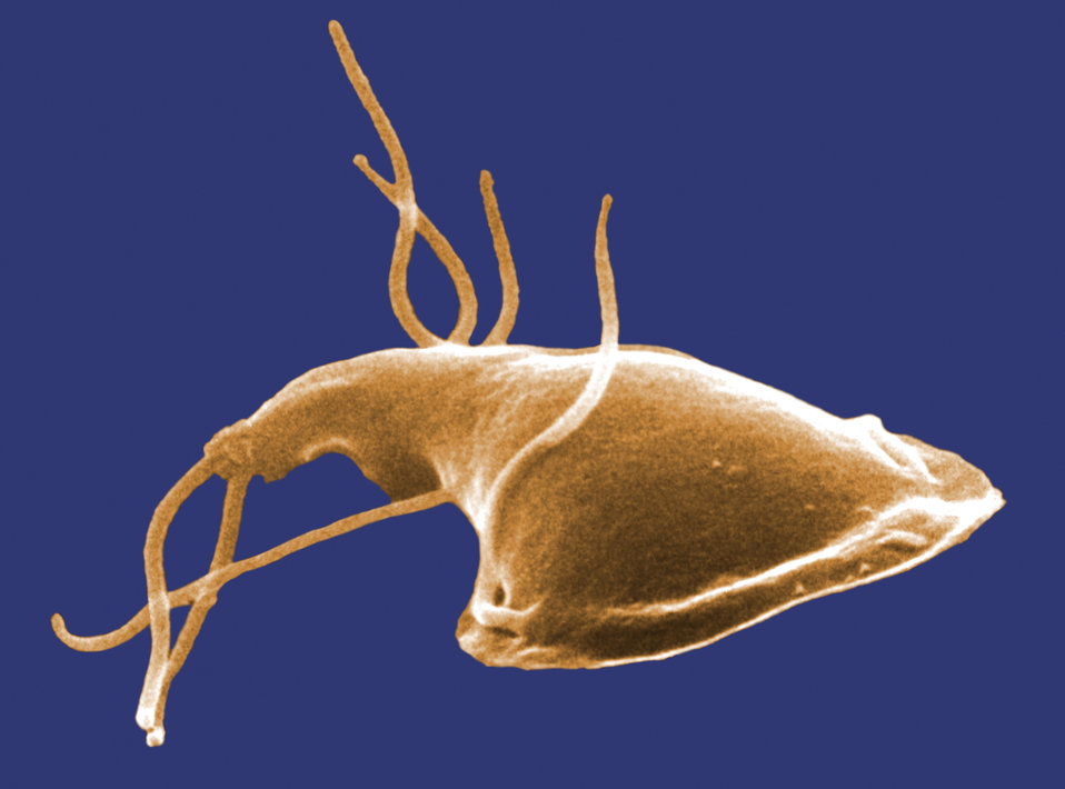 This digitally-colorized scanning electron micrograph (SEM) depicted the dorsal (upper) surface of a Giardia protozoan that had been isolate