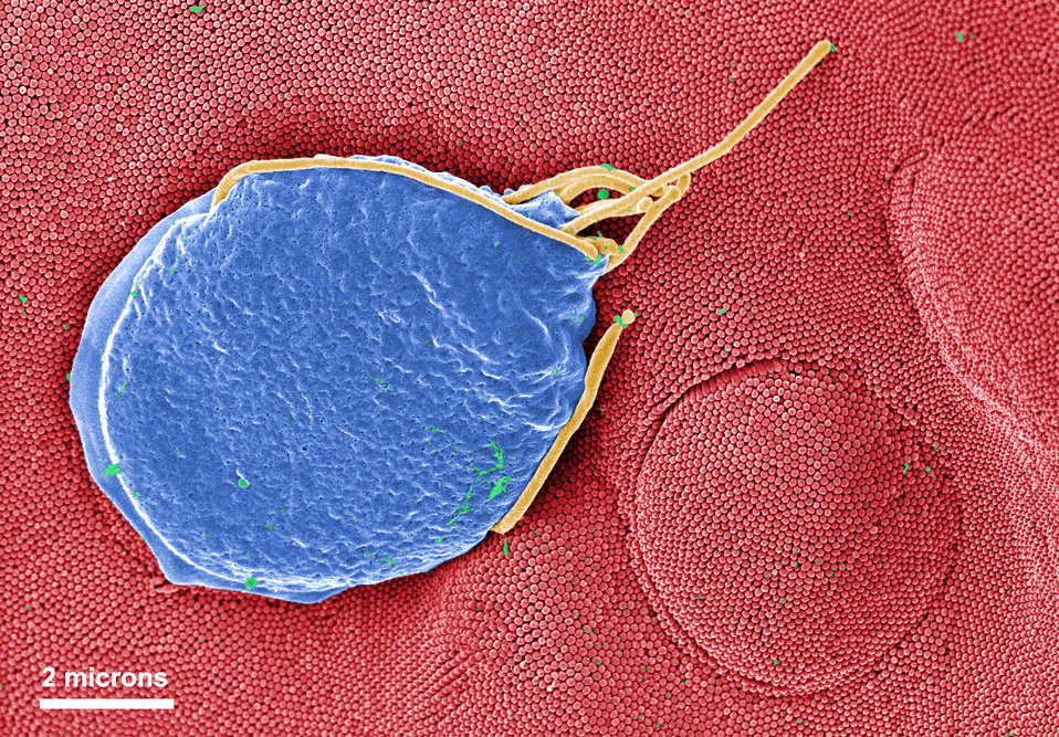 This digitally-colorized scanning electron micrograph (SEM) depicted a Giardia muris protozoan adhering itself to the microvillous border of