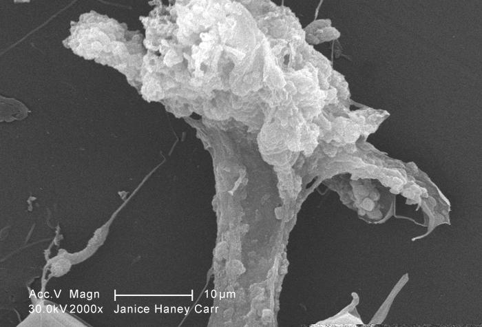 At a magnification of 2000X, this scanning electron micrograph (SEM) of an untreated water specimen extracted from a wild stream, which is m