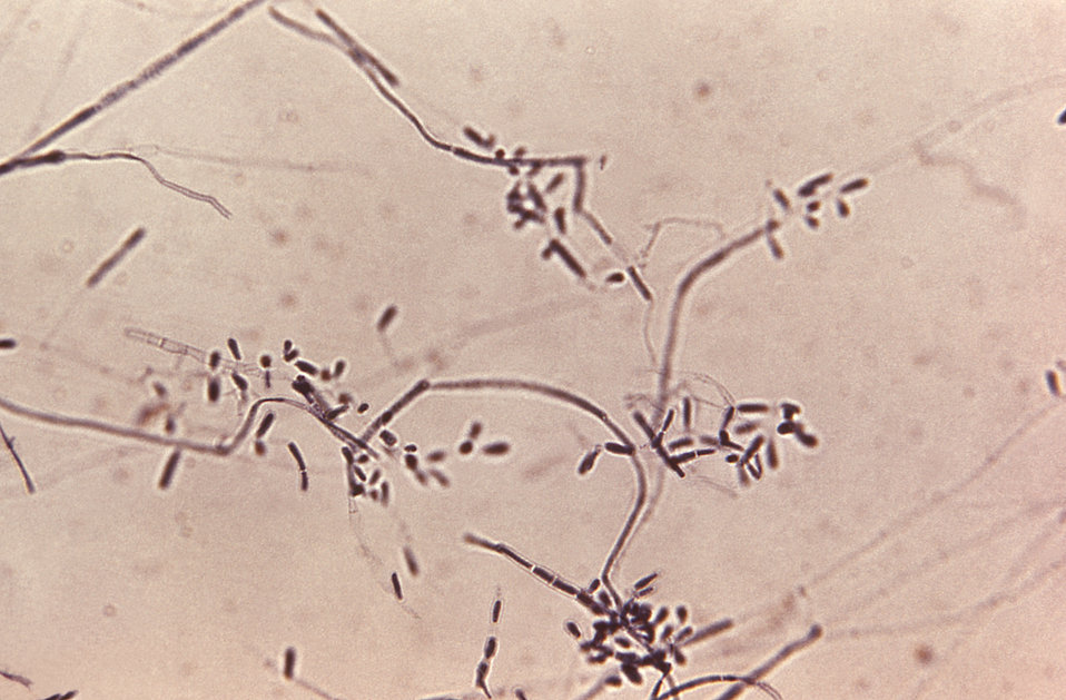 Under a magnification of 200X, this photomicrograph depicts some of the ultrastructural morphology exhibited by the dermatophytic fungus, Tr