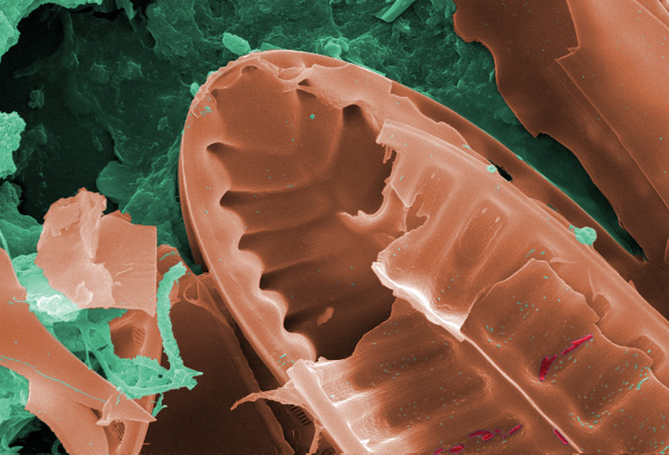 This digitally-colorized scanning electron micrograph (SEM) of an untreated water specimen extracted from a wild stream mainly used to contr