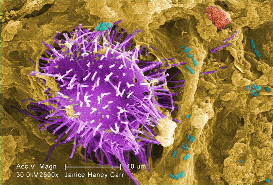 Under a moderately-high magnification of 2500X, this digitally-colorized scanning electron micrograph (SEM) of an untreated water specimen e