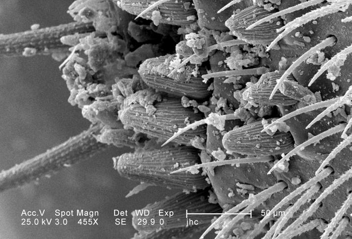 Under a moderately-high magnification of 455X, approximately four times that of PHIL 11796, this scanning electron micrograph (SEM) depicted