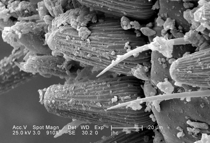 Under a moderately-high magnification of 910X, twice that of PHIL 11797, this scanning electron micrograph (SEM) depicted the ventral caudal