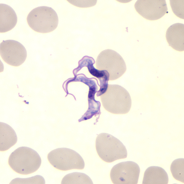 This Giemsa-stained light photomicrograph revealed the presence of two Trypanosoma brucei parasites, which were found in a blood smear.