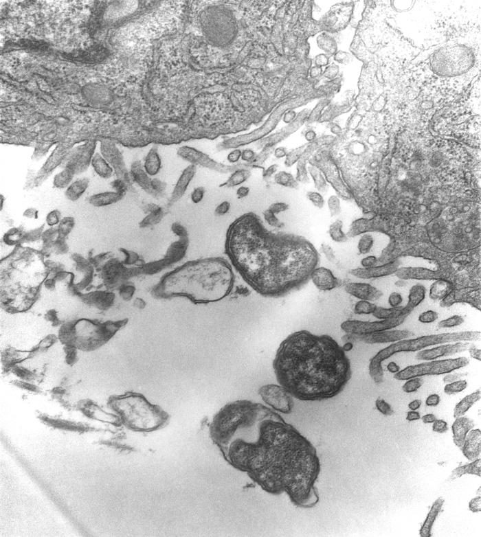 This 1976 transmission electron micrograph (TEM) depicted peritoneal mesothelial cells from a mouse that had been experimentally infected in