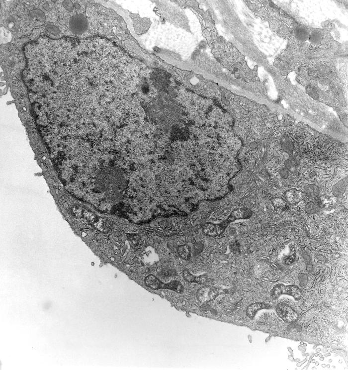 This 1976 transmission electron micrograph (TEM) depicted a hypertrophic peritoneal mesothelial cell of mouse that had been experimentally i