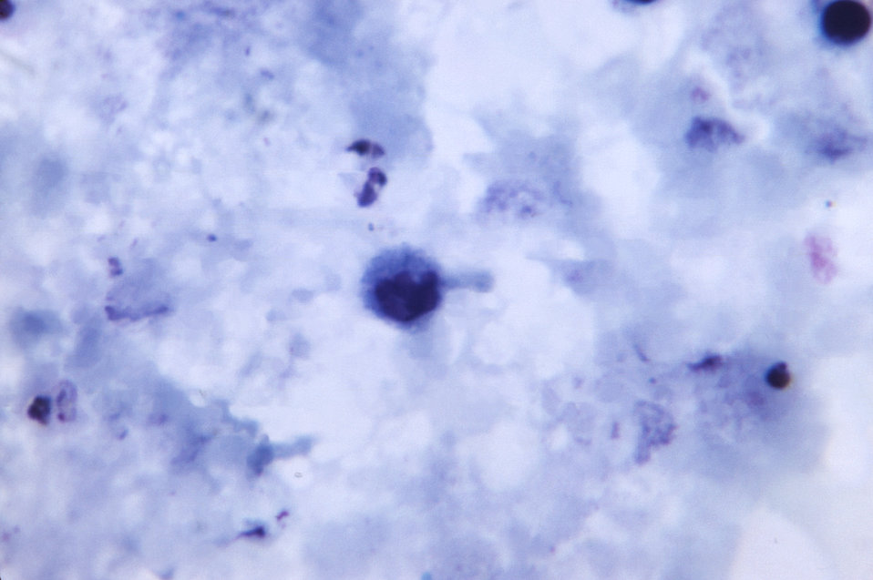 Magnified 1125X, this thick film photomicrograph revealed the presence of a growing Plasmodium vivax trophozoite. There appeared to be no ev