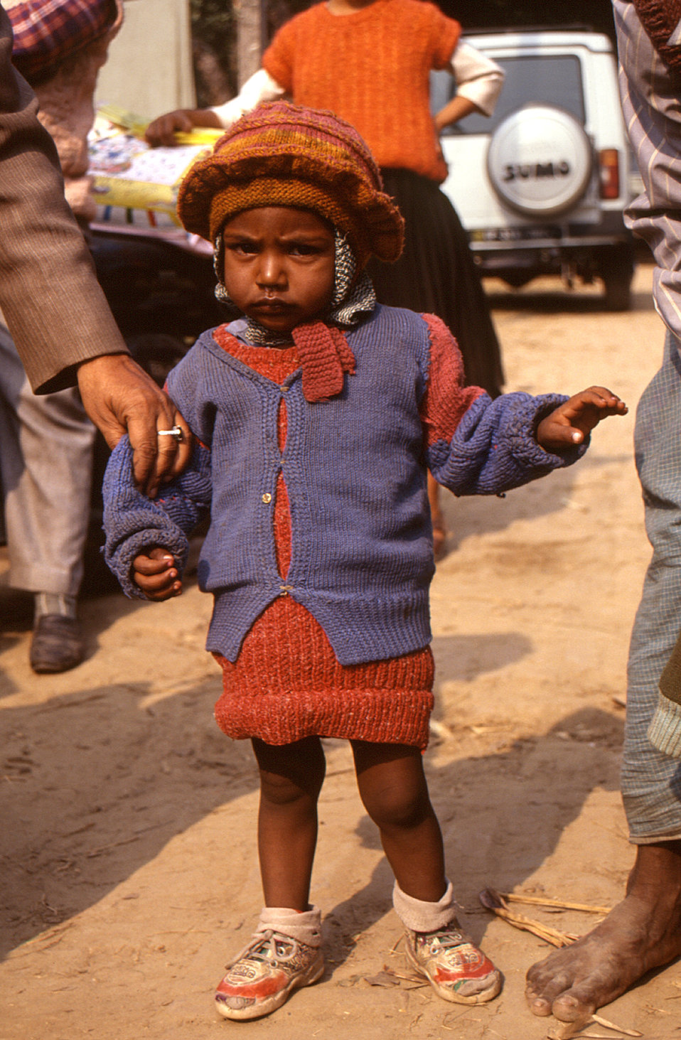 The young child pictured here in this 2000 photograph was a suspected polio victim who was thought to be suffering with acute flaccid paraly