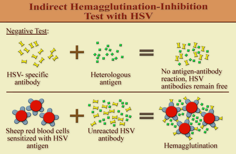 At the component level, this diagram illustrates what takes place microbiologically during an indirect hemagglutination (IHA) inhibition tes