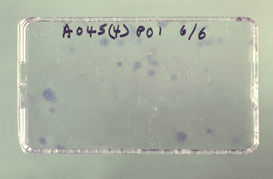 This photograph depicts a 25 sq. cm. Falcon� Flask containing stained colonies of amniotic fluid cells elements.