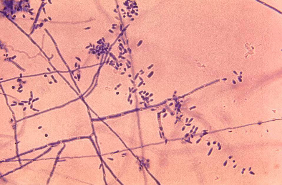 Under a magnification of 320X, this photomicrograph depicts the ultrastructural features exhibited by the dermatophytic fungus, Trichophyton