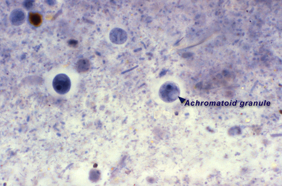 This iron-hematoxylin-stained photomicrograph depicts two spheroid Iodamoeba buetschlii parasitic cysts. The cyst at right contains a clearl